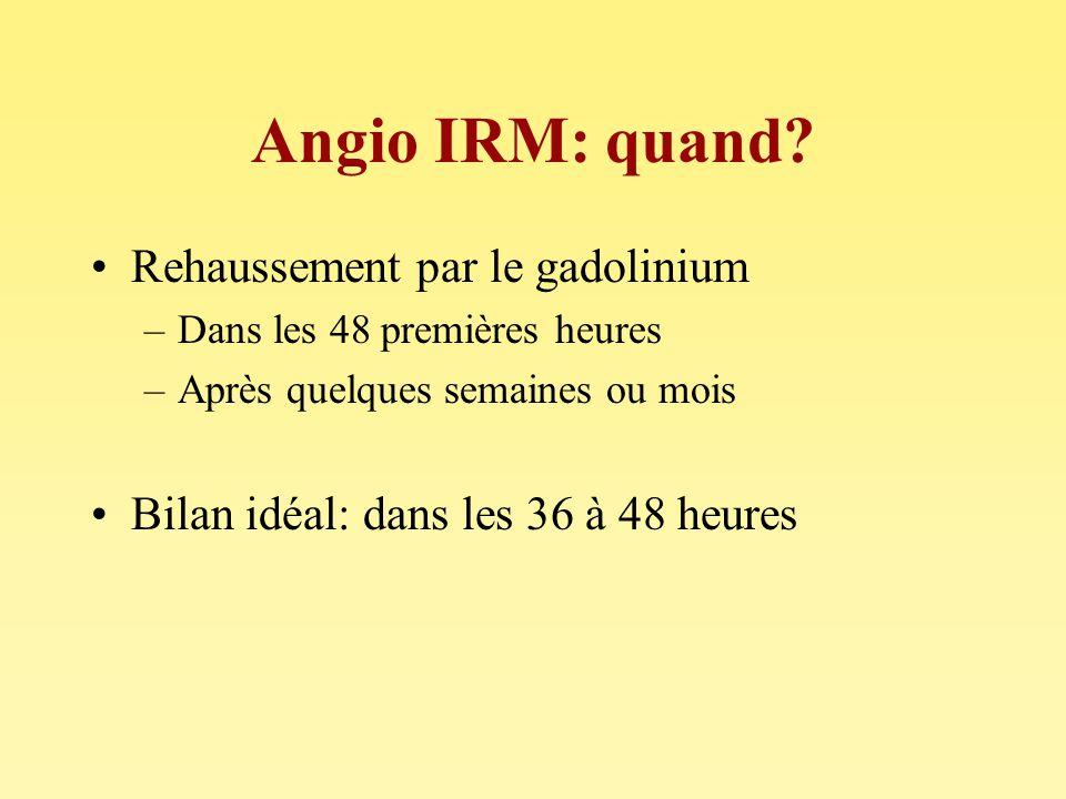 Angio IRM: quand Rehaussement par le gadolinium