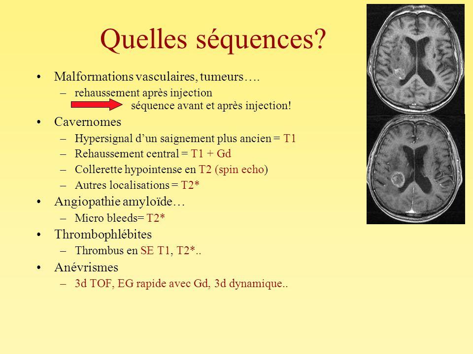 Quelles séquences Malformations vasculaires, tumeurs…. Cavernomes