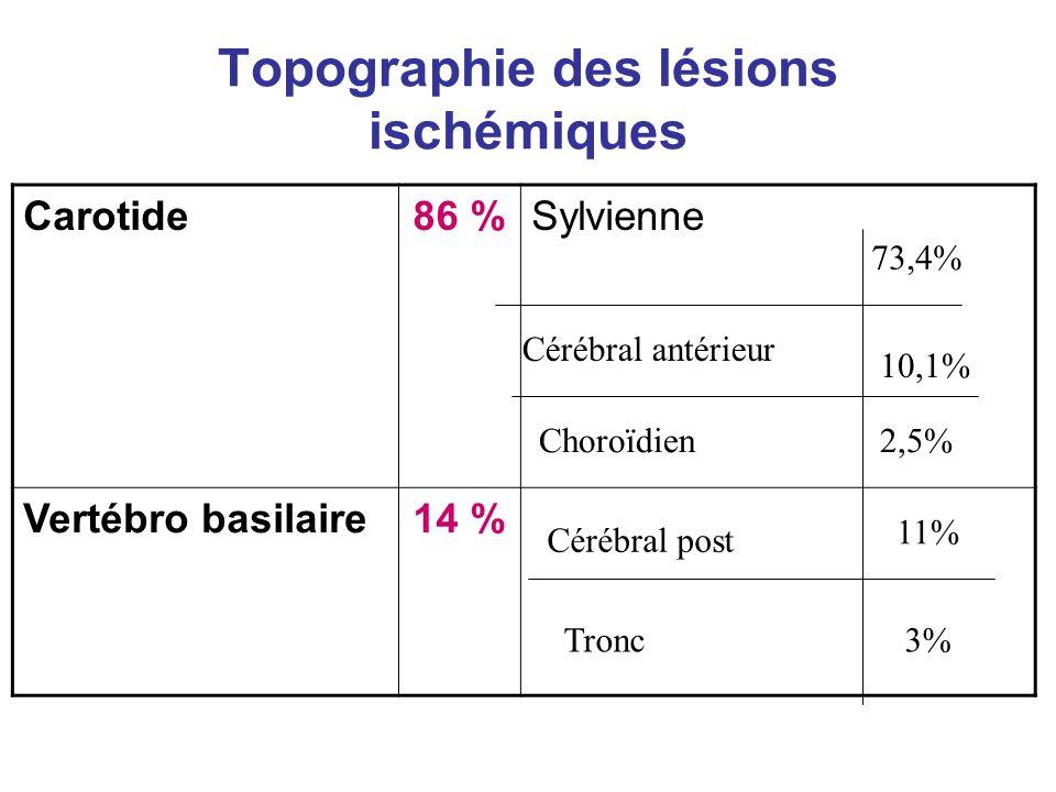 Topographie des lésions ischémiques