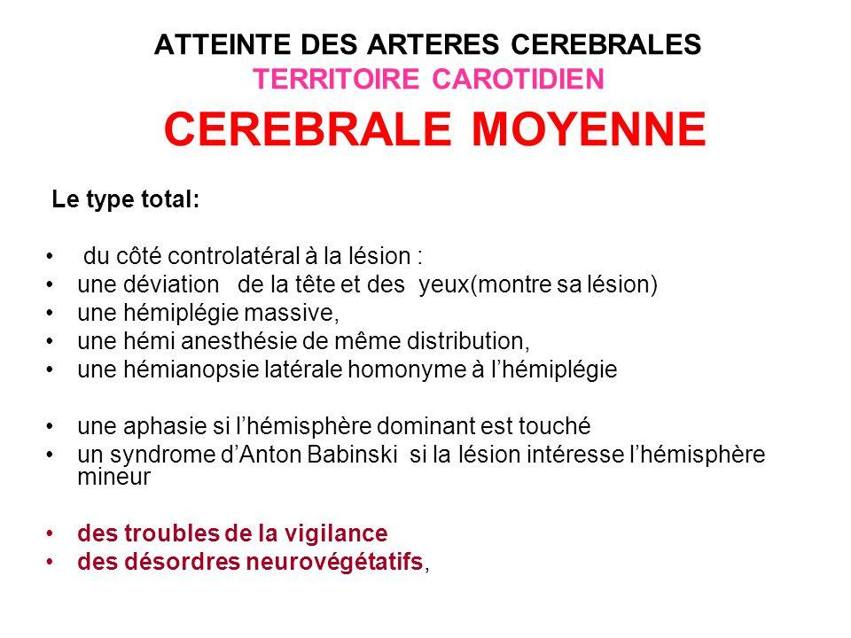 ATTEINTE DES ARTERES CEREBRALES TERRITOIRE CAROTIDIEN CEREBRALE MOYENNE