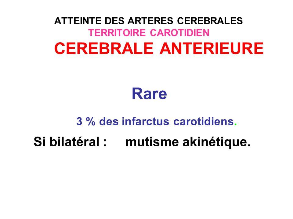 3 % des infarctus carotidiens. Si bilatéral : mutisme akinétique.