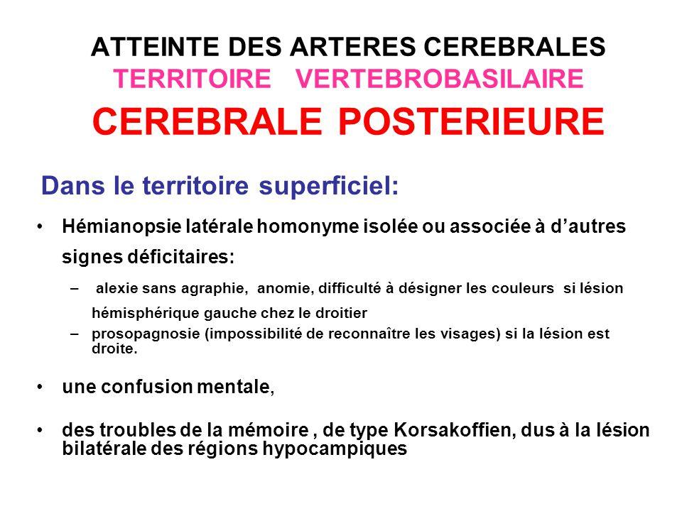 ATTEINTE DES ARTERES CEREBRALES TERRITOIRE VERTEBROBASILAIRE CEREBRALE POSTERIEURE