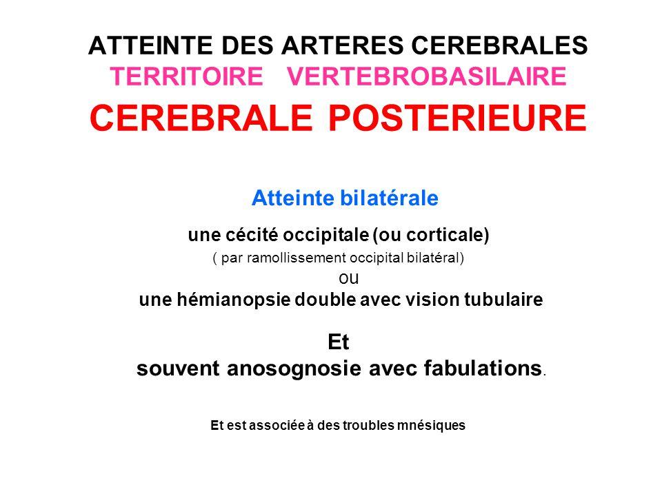 une cécité occipitale (ou corticale)
