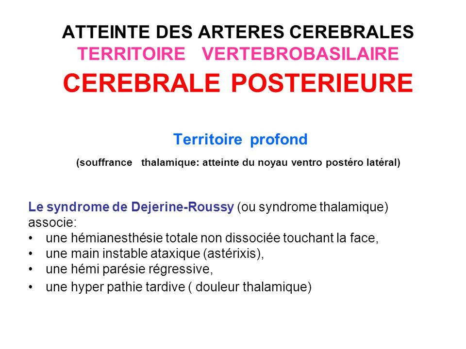 (souffrance thalamique: atteinte du noyau ventro postéro latéral)