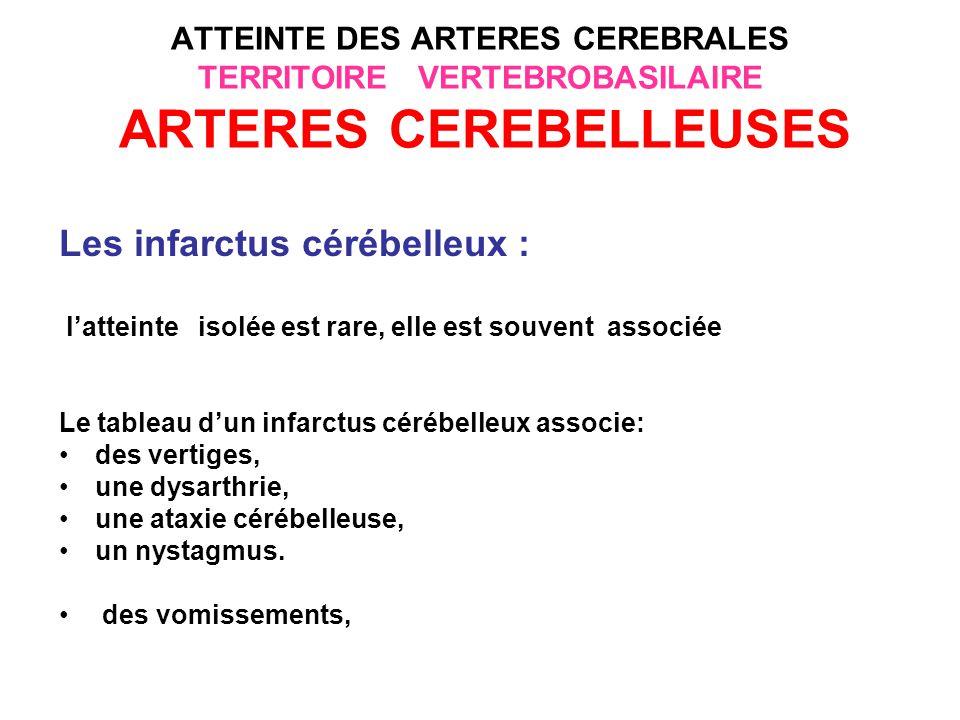 Les infarctus cérébelleux :