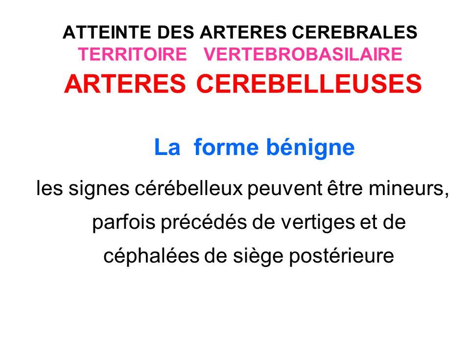 ATTEINTE DES ARTERES CEREBRALES TERRITOIRE VERTEBROBASILAIRE ARTERES CEREBELLEUSES