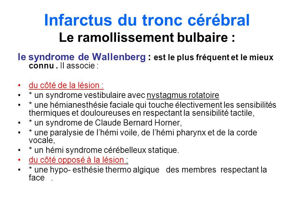 Infarctus du tronc cérébral Le ramollissement bulbaire :