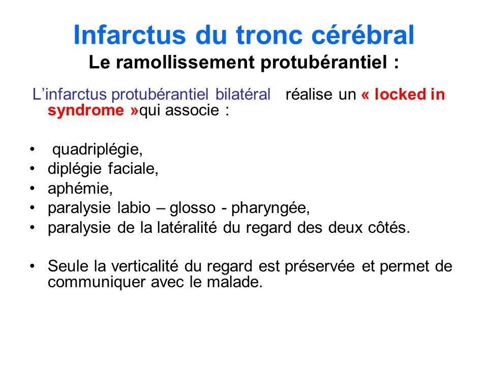 Infarctus du tronc cérébral Le ramollissement protubérantiel :