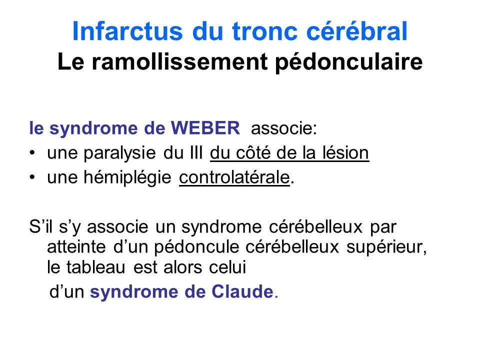Infarctus du tronc cérébral Le ramollissement pédonculaire