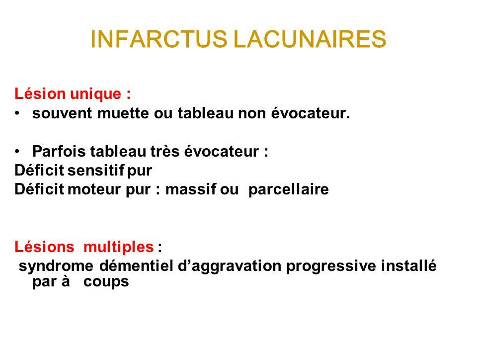 INFARCTUS LACUNAIRES Lésion unique :