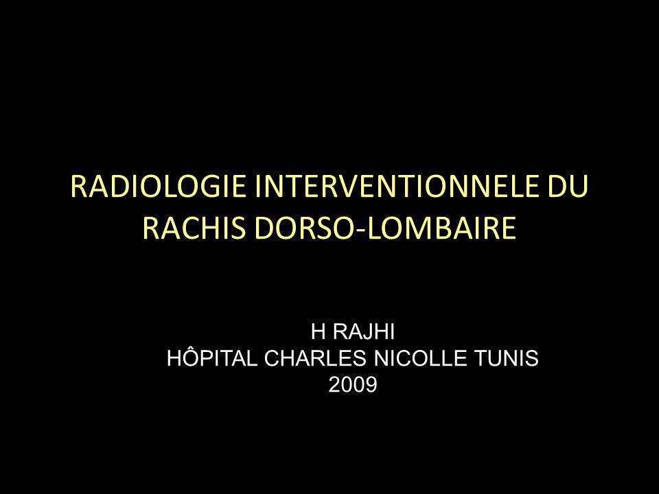 RADIOLOGIE INTERVENTIONNELE DU RACHIS DORSO-LOMBAIRE