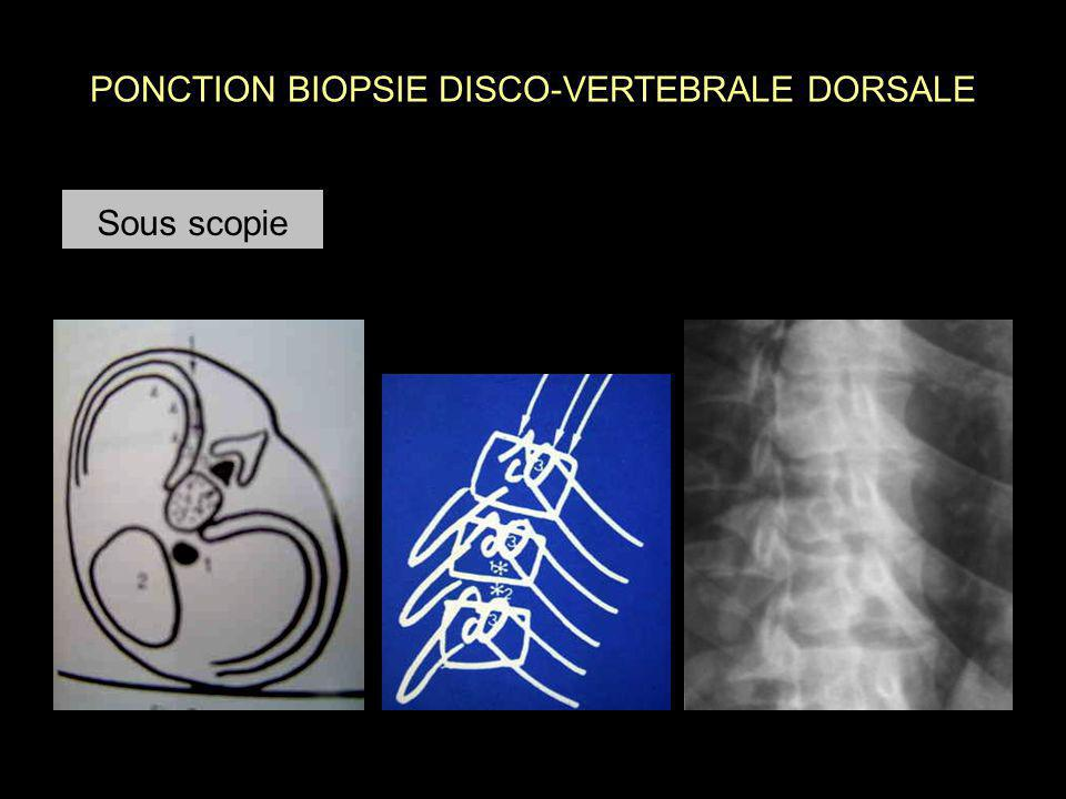 PONCTION BIOPSIE DISCO-VERTEBRALE DORSALE