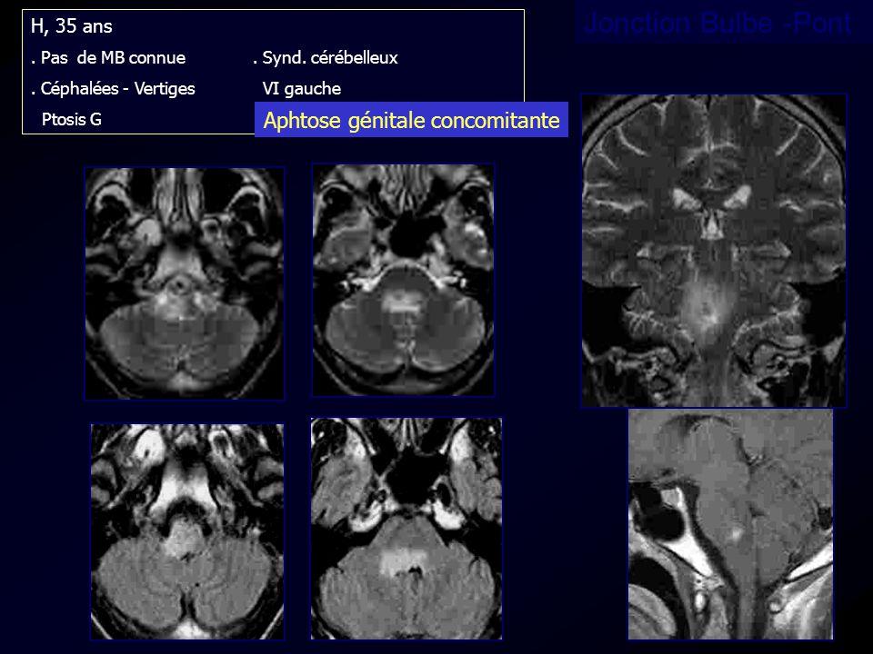 Jonction Bulbe -Pont Aphtose génitale concomitante H, 35 ans