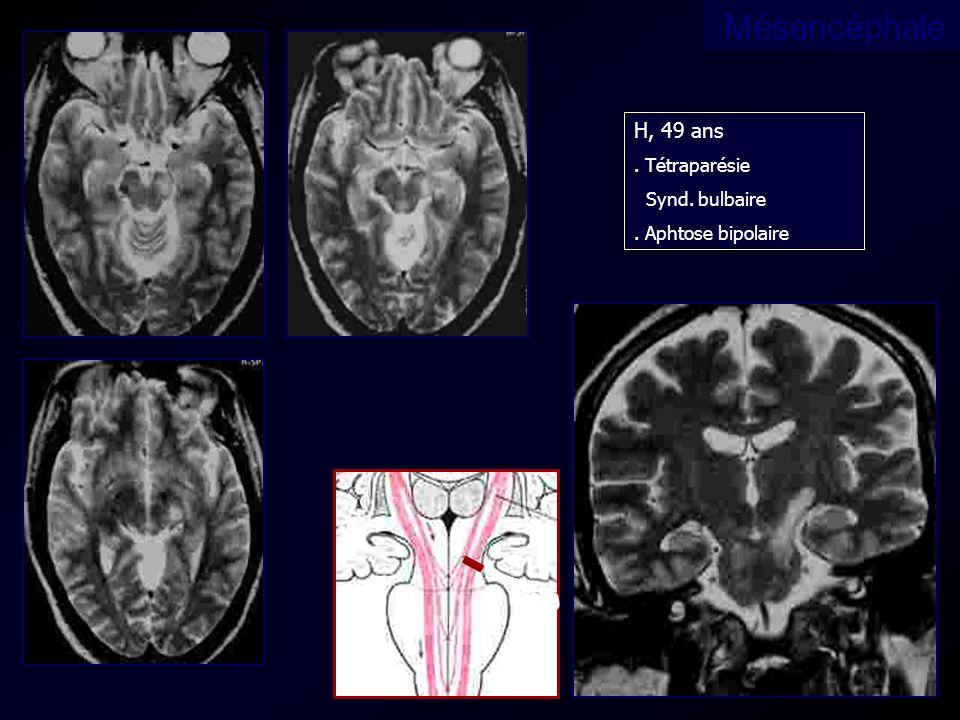 Mésencéphale H, 49 ans . Tétraparésie Synd. bulbaire