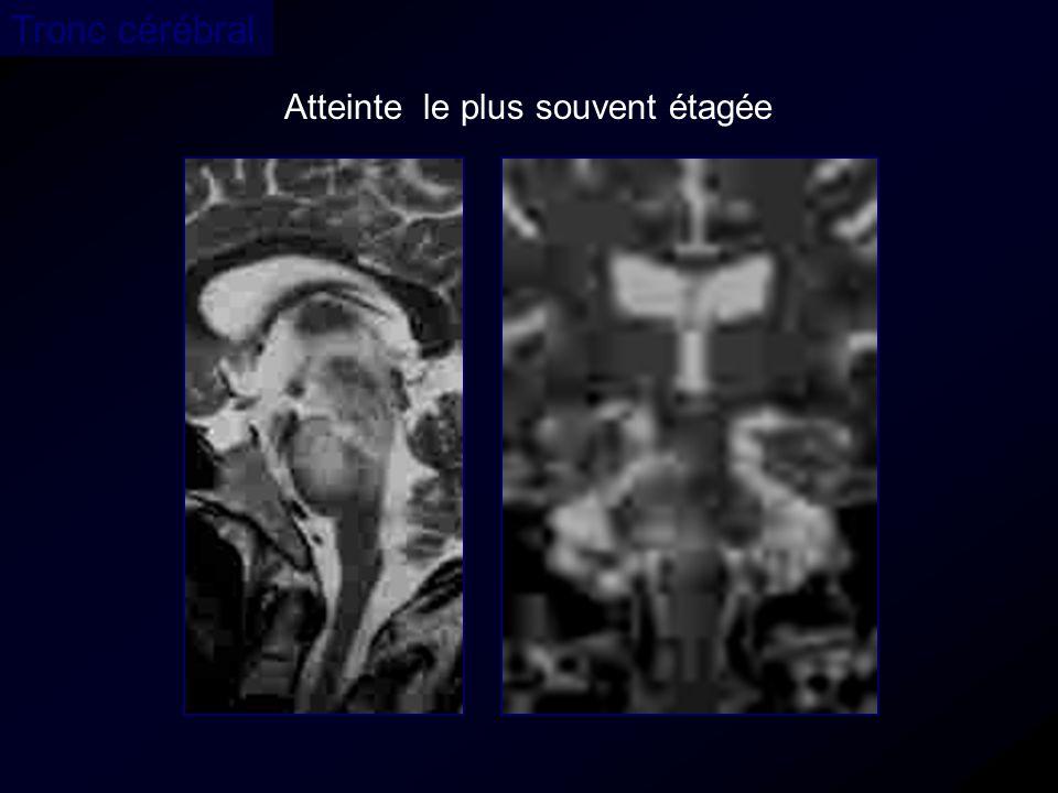 Tronc cérébral Atteinte le plus souvent étagée 35