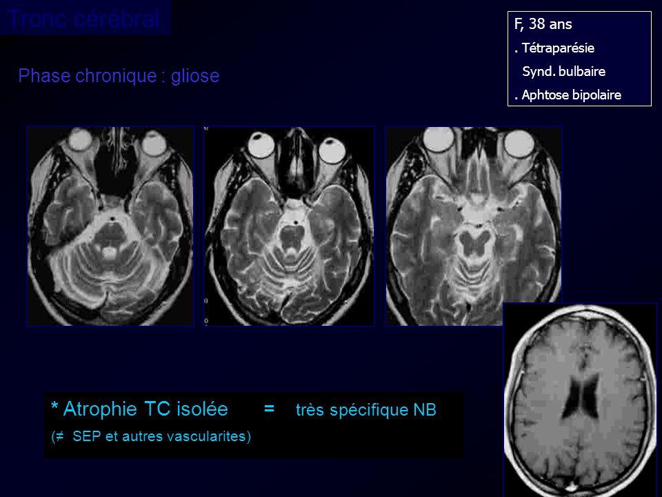 Tronc cérébral * Atrophie TC isolée = très spécifique NB