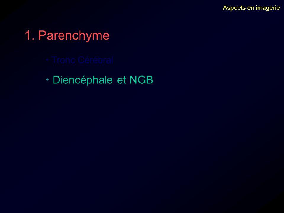 1. Parenchyme  Diencéphale et NGB  Tronc Cérébral