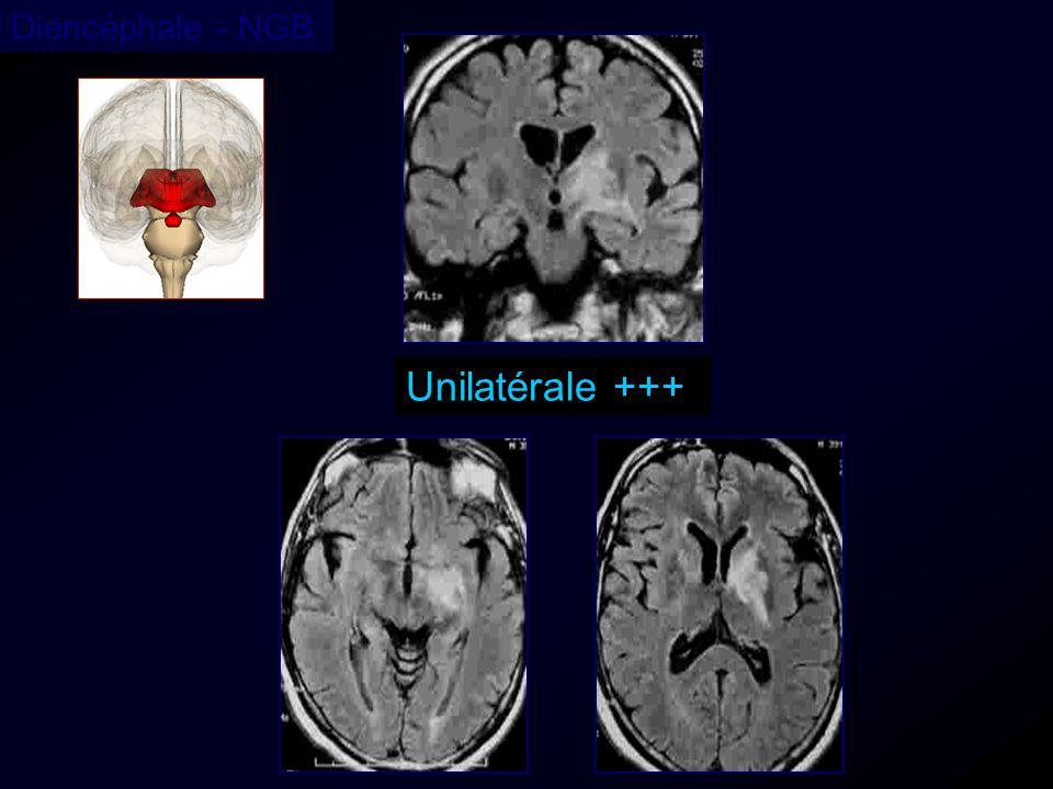 Diencéphale - NGB Unilatérale +++ 38