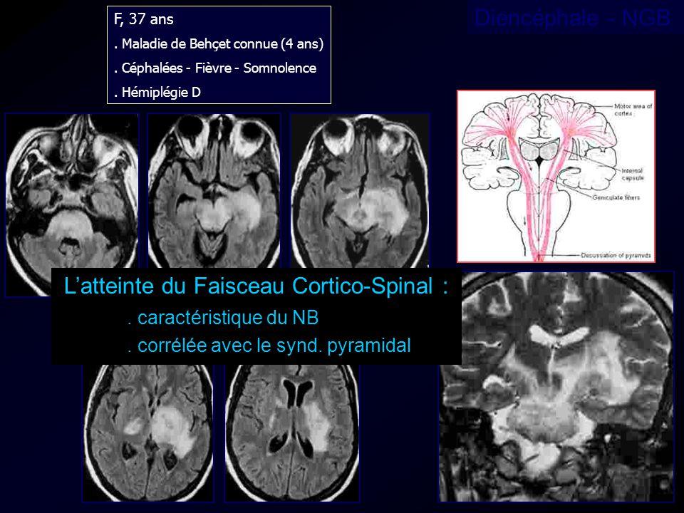 L'atteinte du Faisceau Cortico-Spinal :