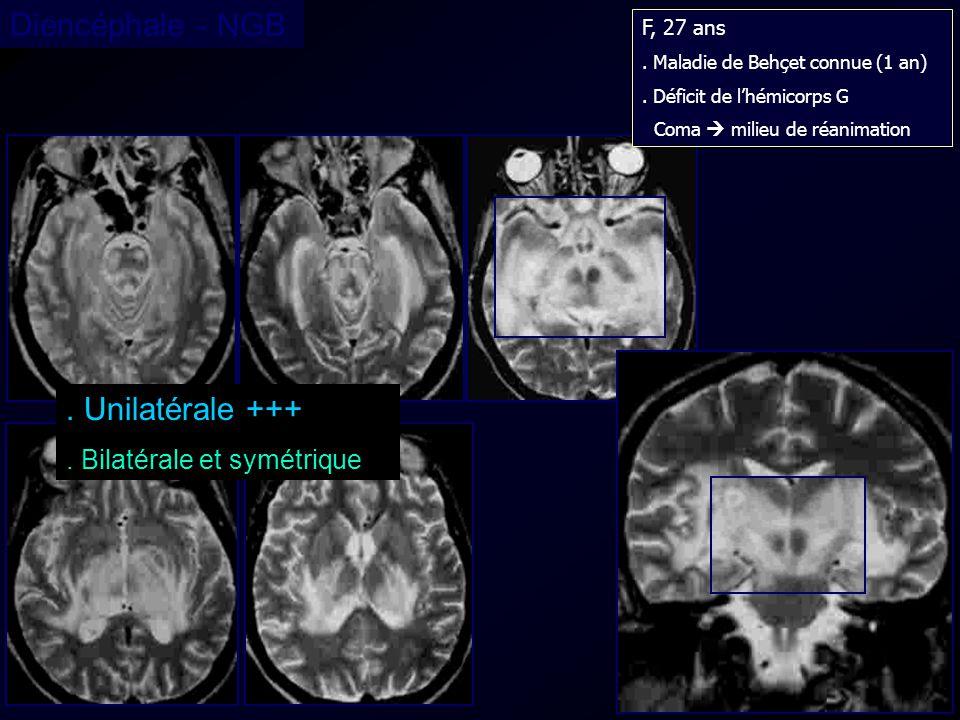 Diencéphale - NGB . Unilatérale +++ . Bilatérale et symétrique