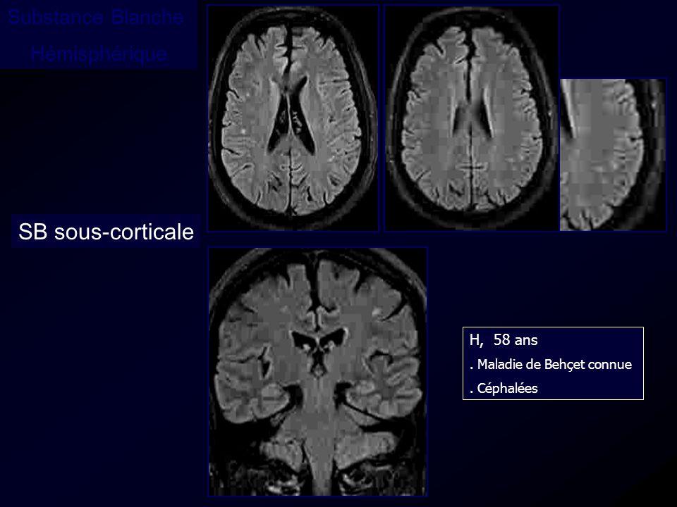 SB sous-corticale Substance Blanche Hémisphérique H, 58 ans