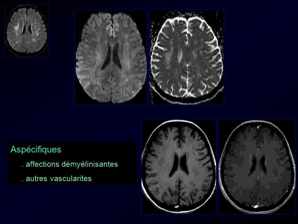 Aspécifiques . affections démyélinisantes . autres vascularites