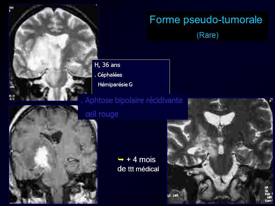 Forme pseudo-tumorale