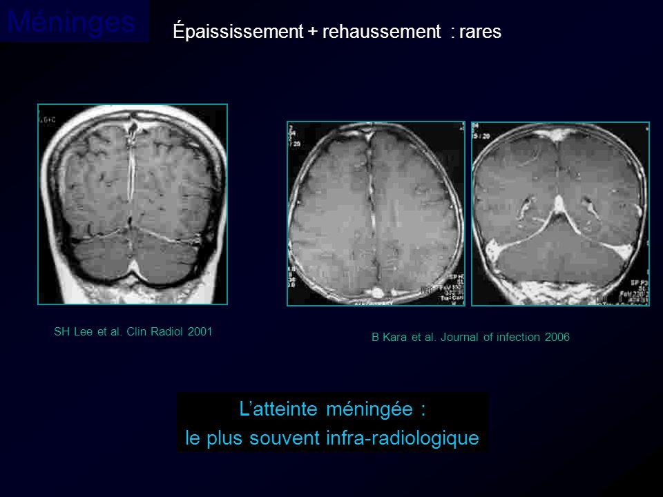 le plus souvent infra-radiologique