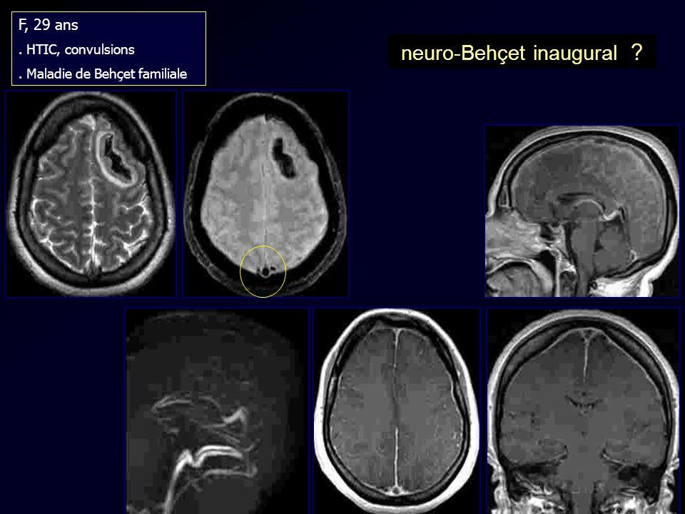 neuro-Behçet inaugural