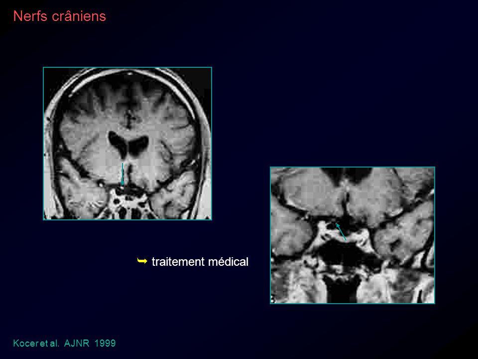 Nerfs crâniens  traitement médical Kocer et al. AJNR 1999