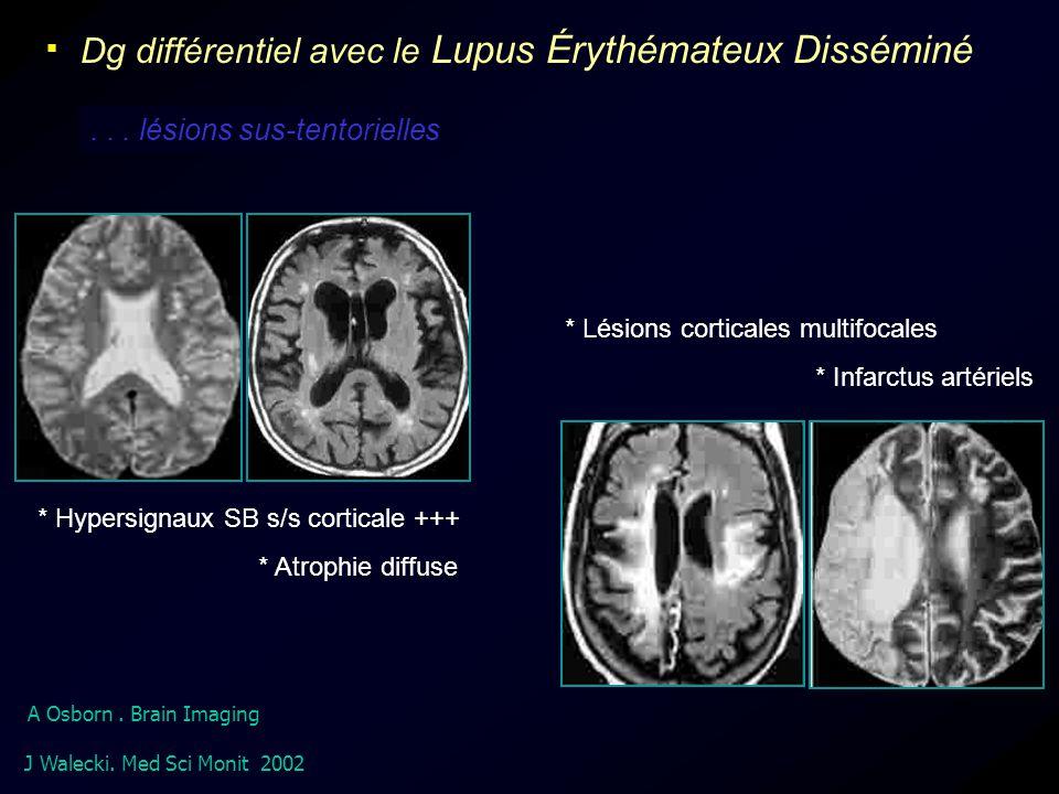  Dg différentiel avec le Lupus Érythémateux Disséminé