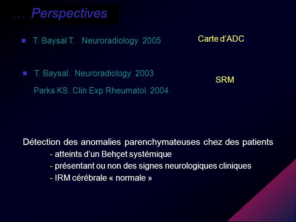 SRM Détection des anomalies parenchymateuses chez des patients