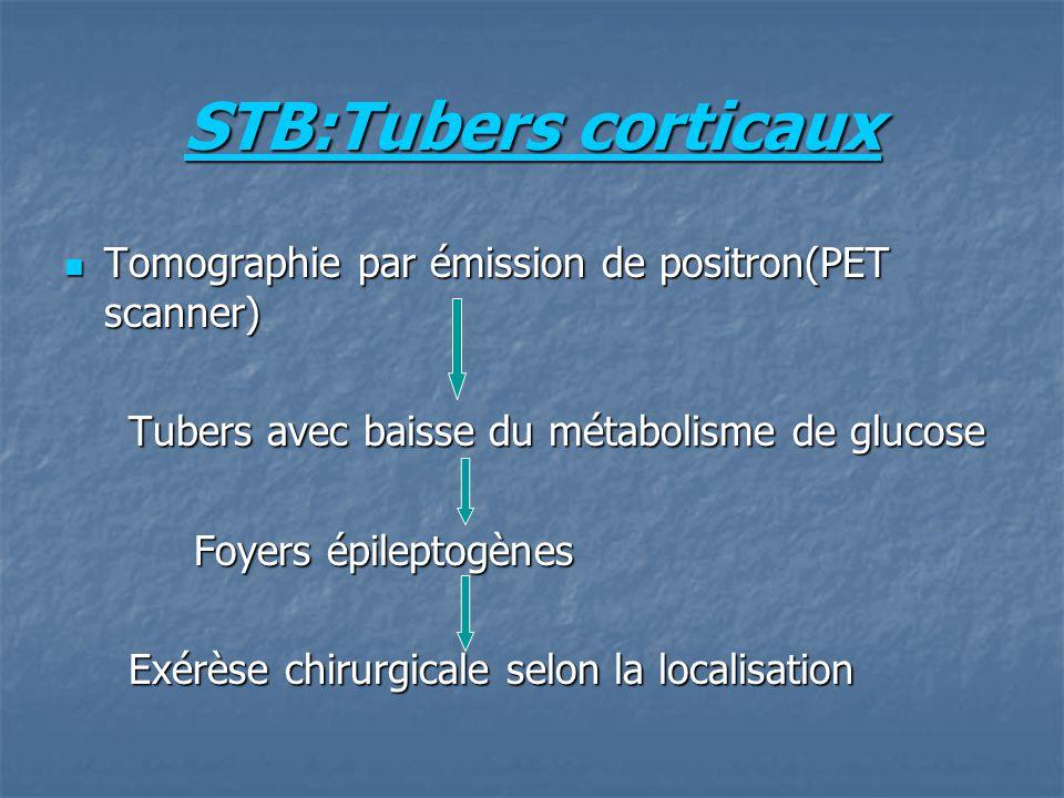 STB:Tubers corticaux Tomographie par émission de positron(PET scanner)
