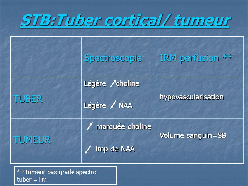 STB:Tuber cortical/ tumeur