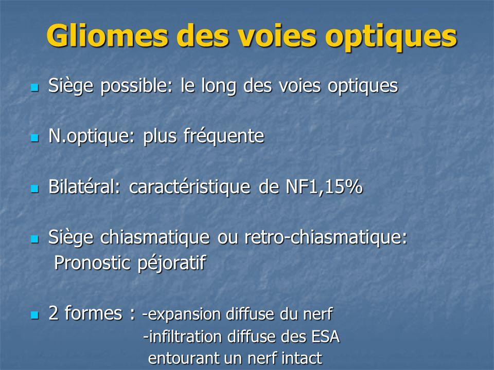 Gliomes des voies optiques