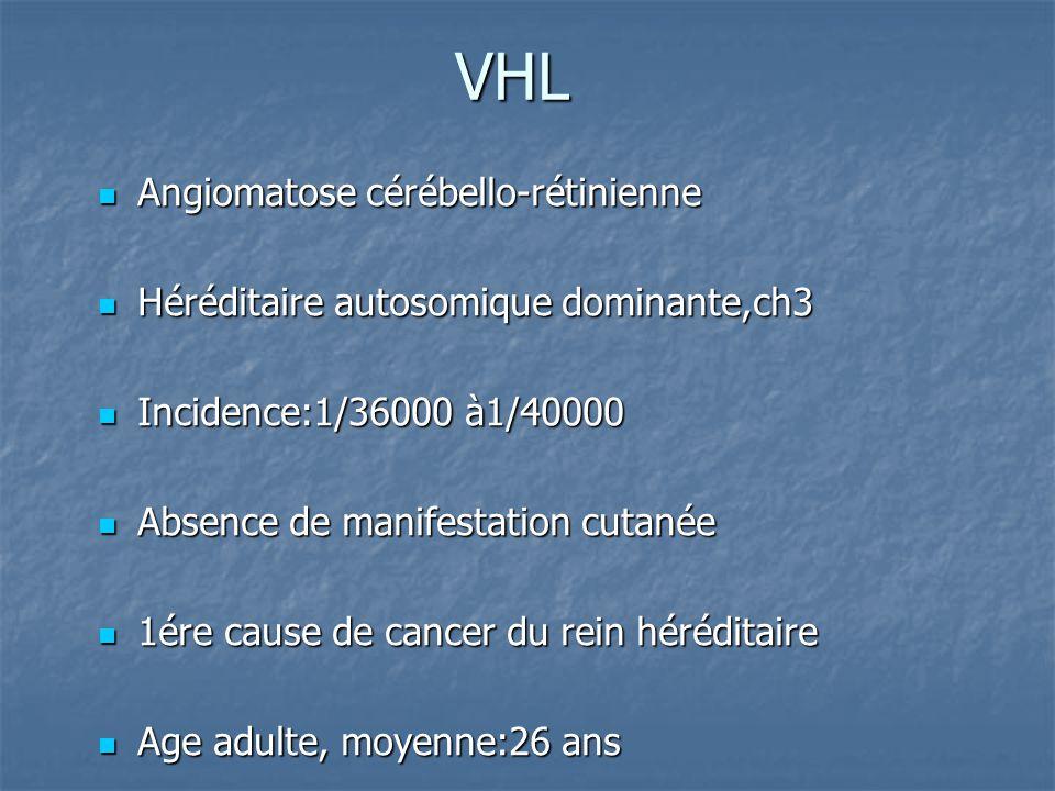 VHL Angiomatose cérébello-rétinienne
