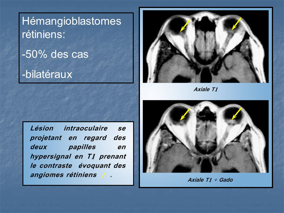 Hémangioblastomes rétiniens: