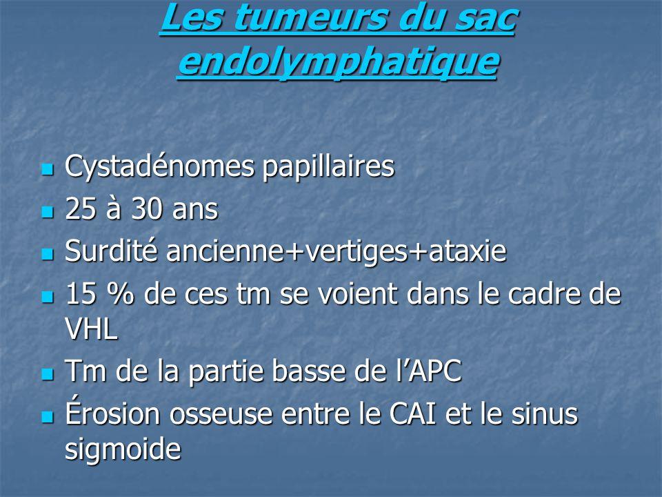 Les tumeurs du sac endolymphatique
