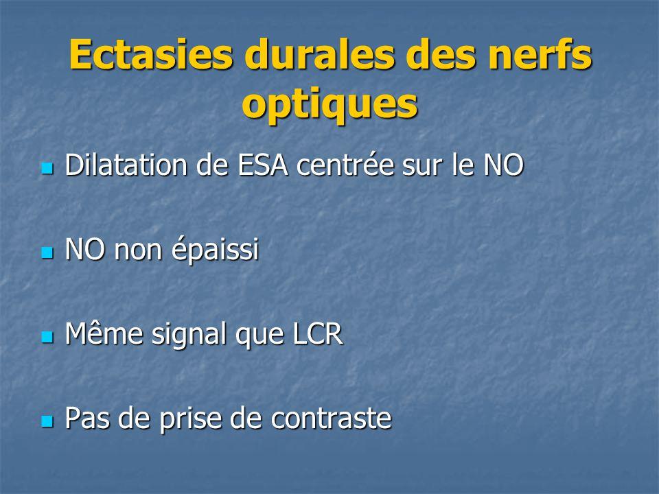 Ectasies durales des nerfs optiques