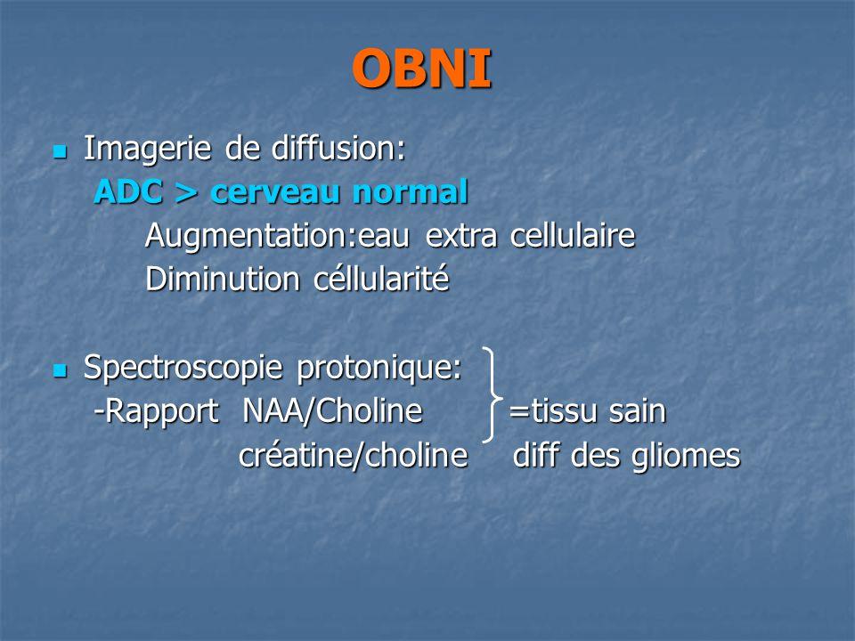 OBNI Imagerie de diffusion: ADC > cerveau normal