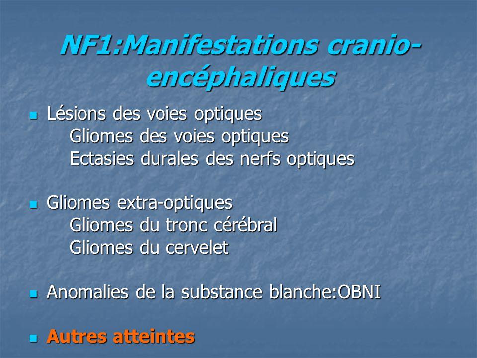 NF1:Manifestations cranio-encéphaliques