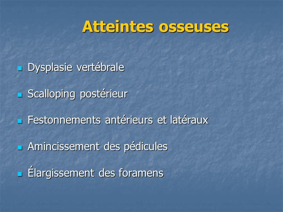 Atteintes osseuses Dysplasie vertébrale Scalloping postérieur