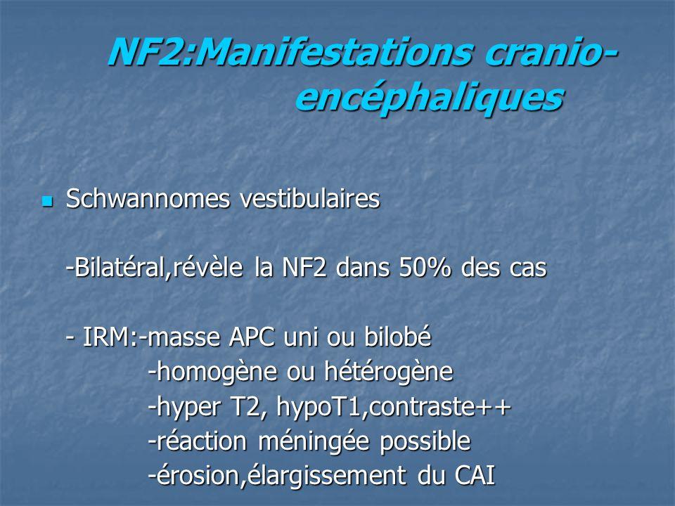 NF2:Manifestations cranio- encéphaliques