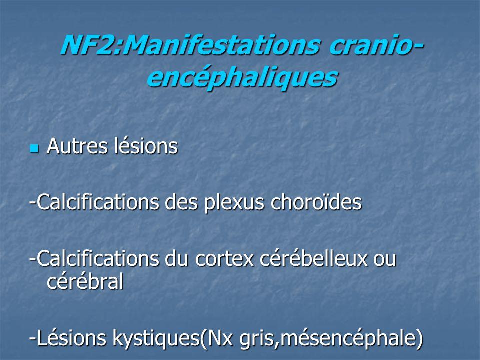 NF2:Manifestations cranio-encéphaliques