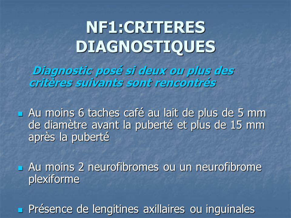 NF1:CRITERES DIAGNOSTIQUES
