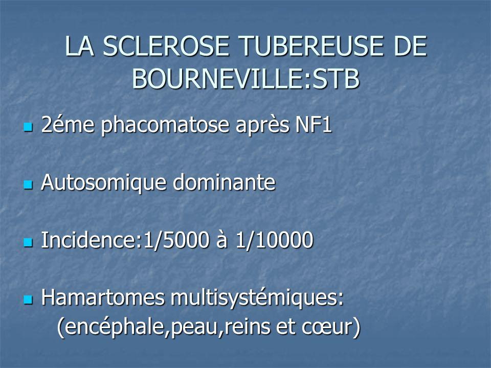 LA SCLEROSE TUBEREUSE DE BOURNEVILLE:STB
