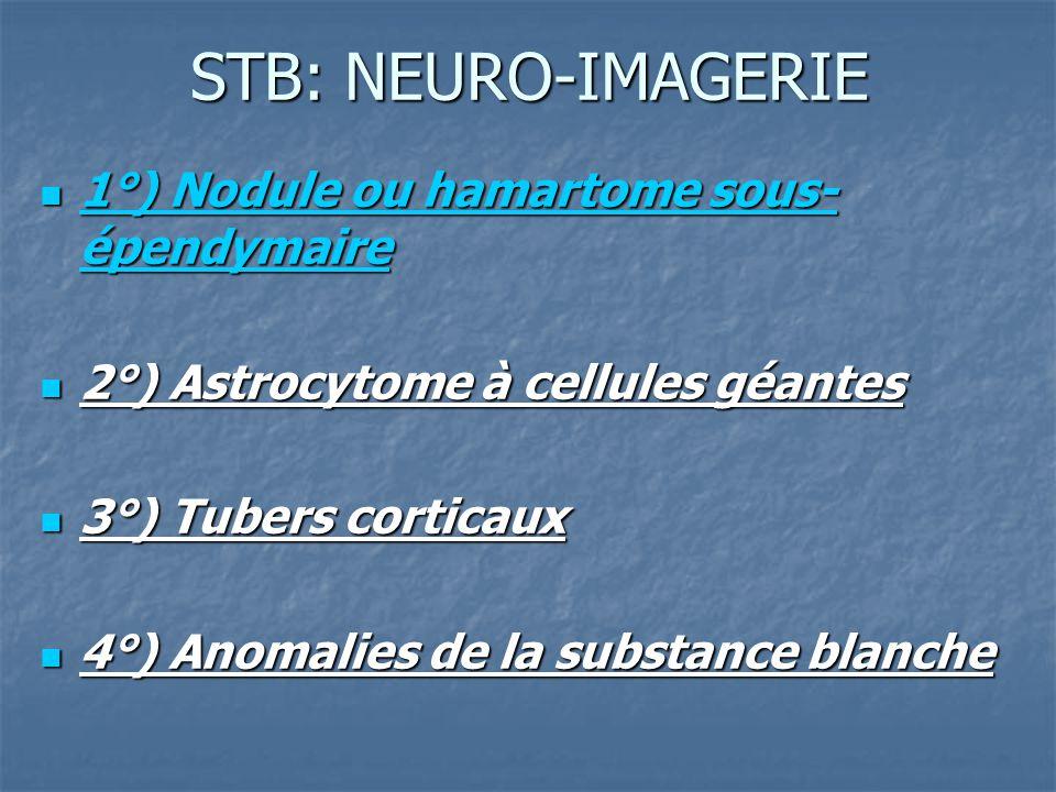 STB: NEURO-IMAGERIE 1°) Nodule ou hamartome sous-épendymaire