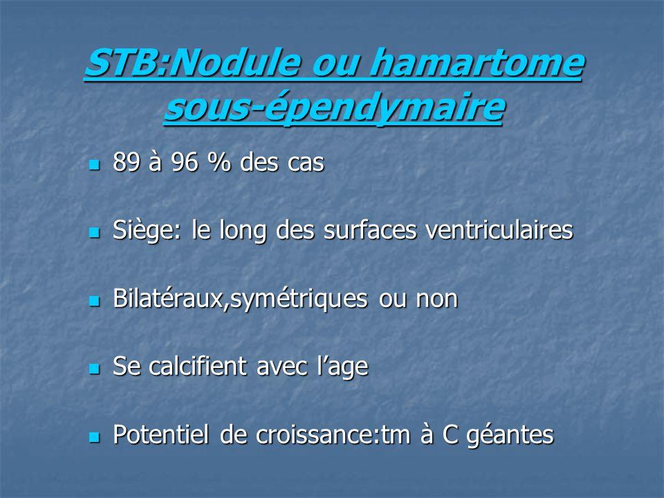 STB:Nodule ou hamartome sous-épendymaire
