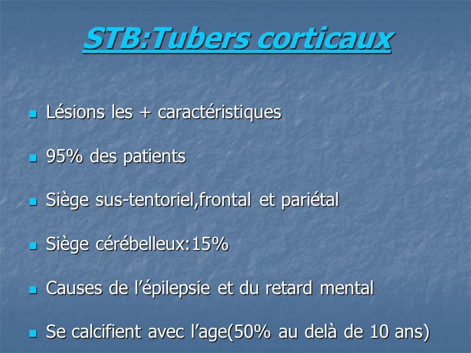 STB:Tubers corticaux Lésions les + caractéristiques 95% des patients