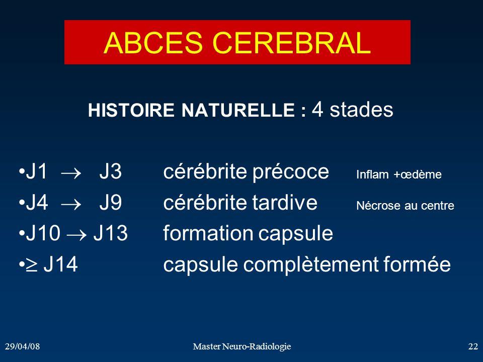 ABCES CEREBRAL J1  J3 cérébrite précoce Inflam +œdème